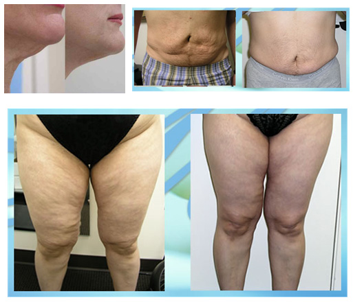 Injections for fat loss